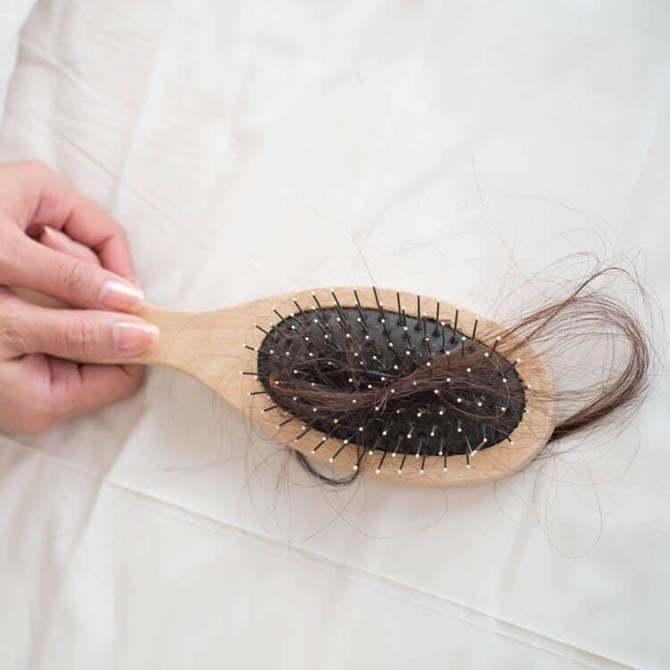 Hair Fall: Tips for Treating & Managing