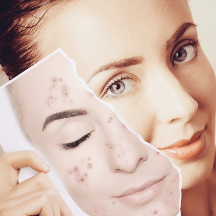 Benefits of Salicylic Acid in Skincare