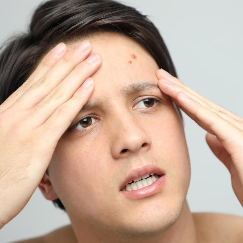 The Best Skin Regimen for Acne